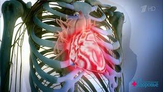 Здоровье  Заповеди для маминого сердца  Аспирин при сердечной боли  (05 03 2017)