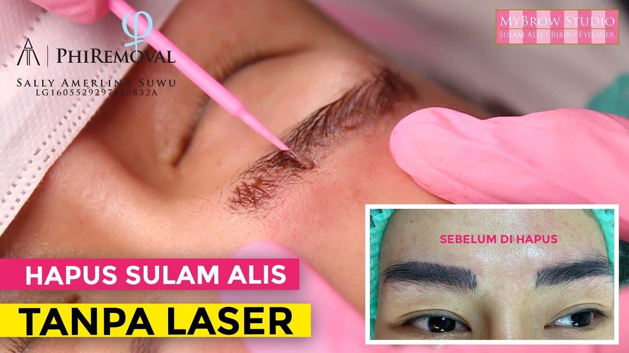 Hapus Sulam Alis Tanpa Laser Tanpa Sakit Proses Cepat Sulam Alis Hilang Youtube