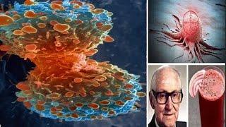 أمر مفرح.. الخلايا السرطانية تموت في 42 يوماً: هذا العصير فقط !