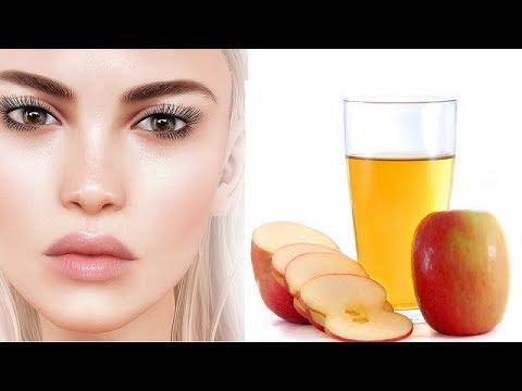 सेब-के-सिरके-के-कमाल-के-फायदे-।-health-and-beauty-benefits-of-apple-cider-vinegar