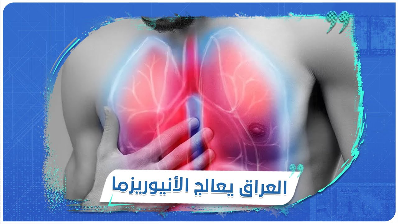 أطباء عراقيون ينجحون باستخدام تقنية جديدة لمعالجة مرض -أم الدم-