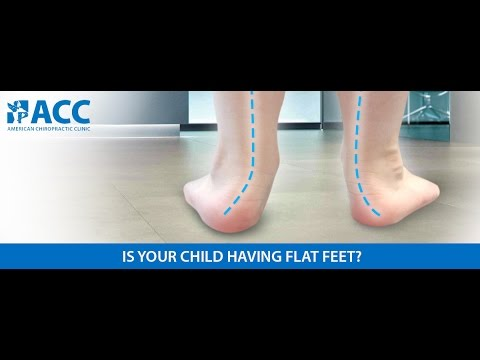 How to correct flat feet in toddlers