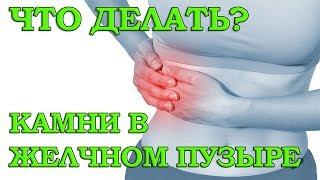 Камни в желчном пузыре симптомы и лечение, что делать? Желчекаменная болезнь (ЖКБ) холелитиаз #1