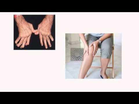 Симптомы и лечение полиартрита на