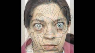 видео Базедова болезнь - причины и симптомы, что это такие, какие функции?