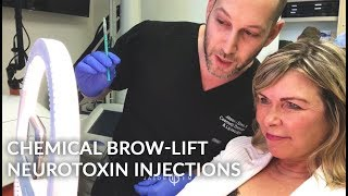 Chemical Brow Lift | Neuromodulator | Non- Surgical Treatment