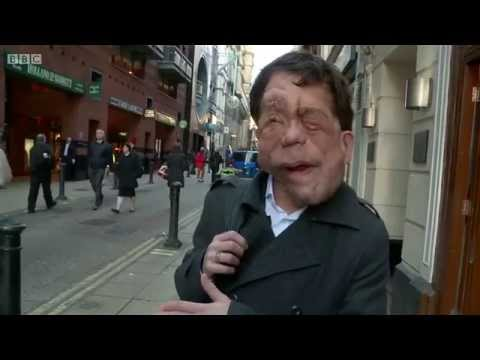 The Ugly Face of Disability Hate Crime (2015) - BBC documentary starring Adam Pearson exploring why disability hate crime goes under-reported, under-recorded and under people's radar