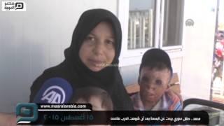 مصر العربية   محمد.. طفل سوري يبحث عن البسمة بعد أن شوهت الحرب ملامحه