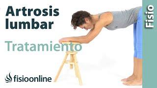 Artritis ¿Cómo la en la baja? espalda se trata
