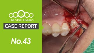 [ENG] Teared fixture removal with trephine bar and simultaneous implant placement
