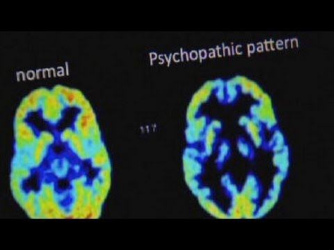 Inside the Brain of a Real Psychopath with Dr. James Fallon