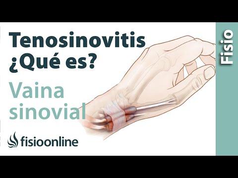 Tenosinovitis de Quervain. Causas, Síntomas y Tratamiento ...