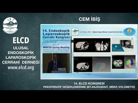 ELCD ULUSAL ENDOSKOPİK LAPAROSKOPİK CERRAHİ DERNEĞİ - CEM İBİŞ