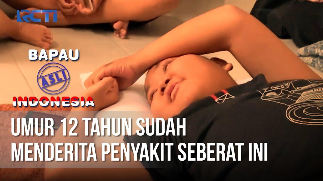 BAPAU ASLI INDONESIA - Umur 12 Tahun Sudah Menderita Penyakit Seberat Ini [17 September 2020]