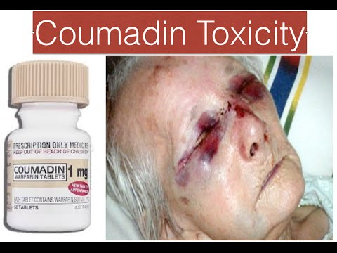 Coumadin Warfarin Toxicity Youtube