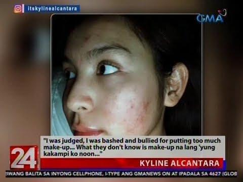 """24 Oras: Kyline Alcantara, Ikinuwento Ang Kanyang """"acne Breakout"""" Experience"""