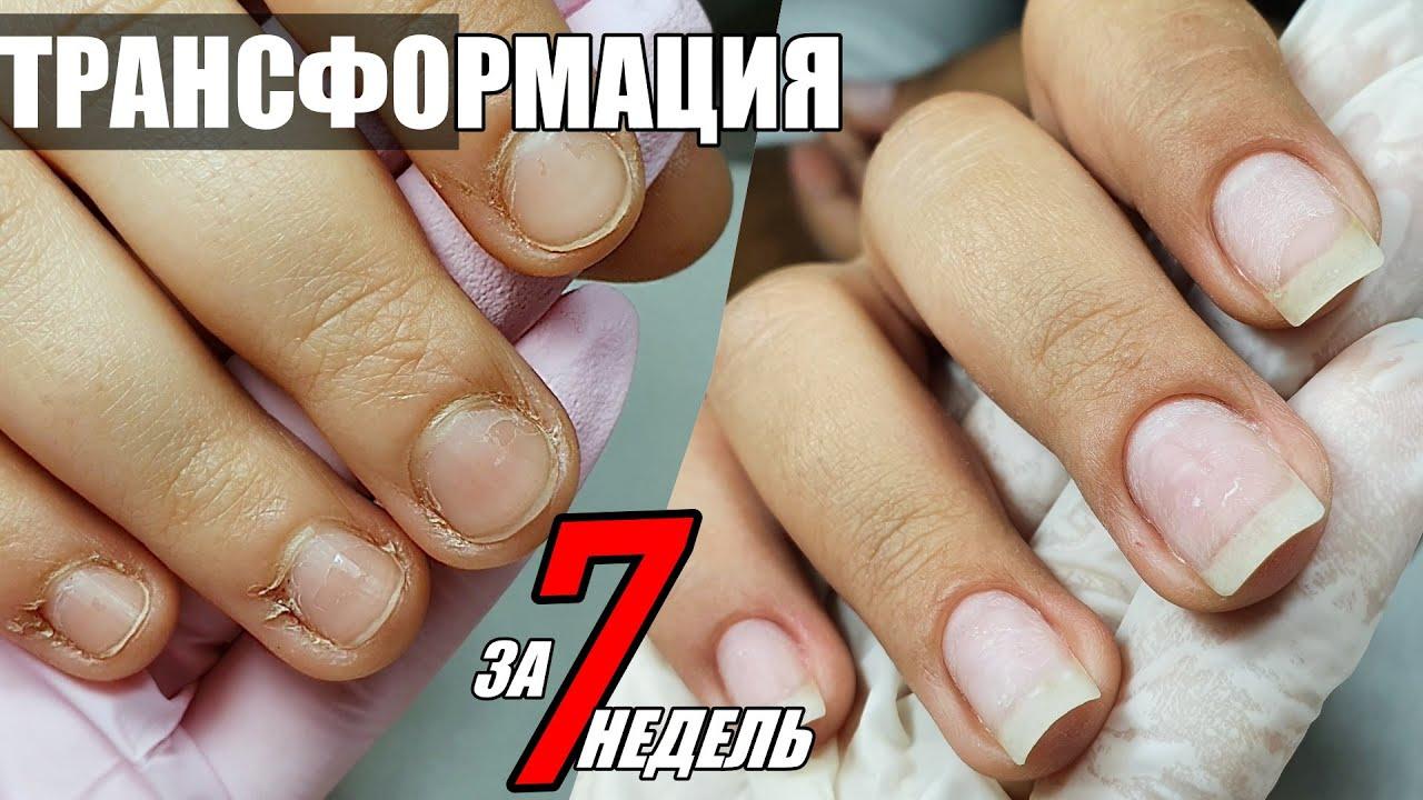 ТРАНСФОРМАЦИЯ: идеальные ногти и кутикула за 7 недель
