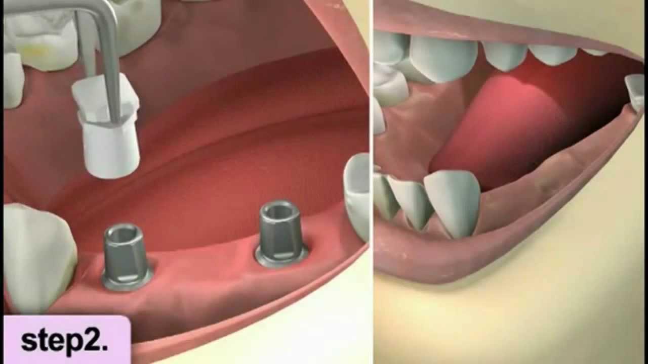 Diş Yaptırma Ve Çeşitleri