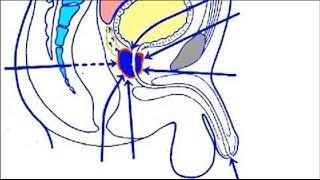 Repeat youtube video Prostata-Vorsorgeuntersuchung - Informationen für Männer