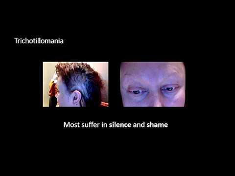 """What the Pluck? Living with Trichotillomania"" | Judith Stevenson | TEDxUniversityofGlasgowSalon"