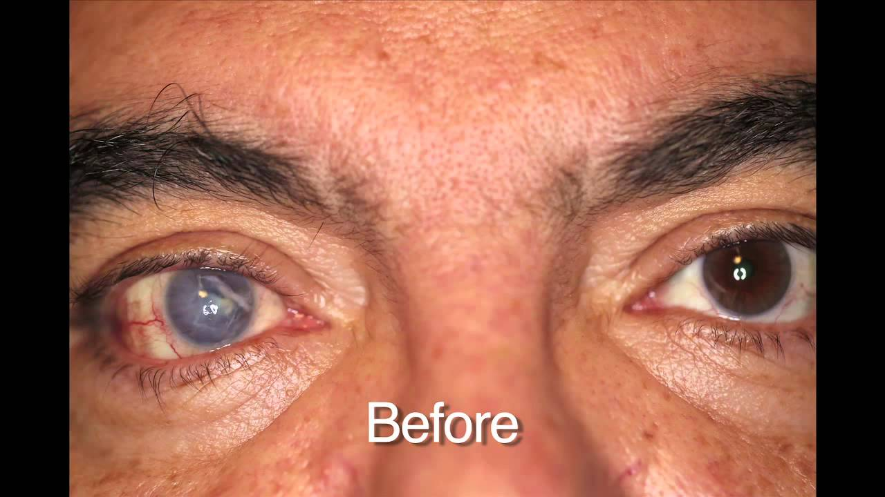 Custom Color Contacts Prosthetic Before And Afters Youtube