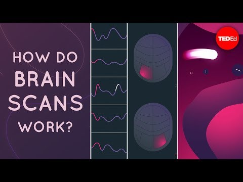 How do brain scans work? - John Borghi and Elizabeth Waters