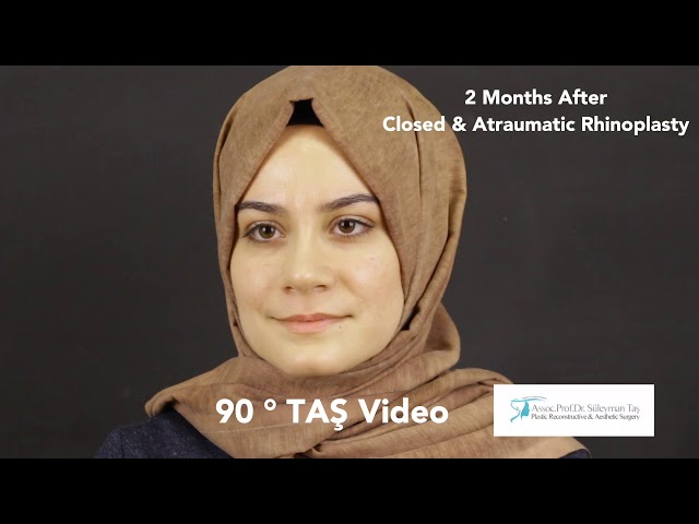 90° TAS Video | Suleyman TAS, MD, Assoc.Prof.