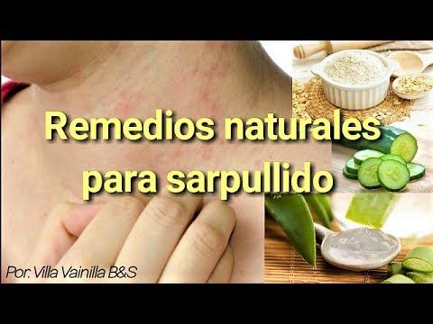 Remedio natural para el sarpullido en la piel