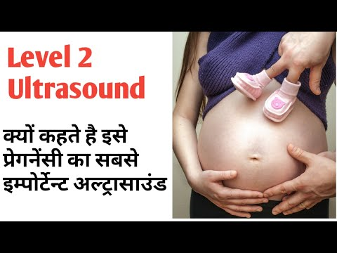 Level 2 Ultrasound || Very important ultrasound of Pregnancy|| In Hindi