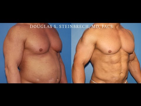 Gladiator Abs body implants for men in Los Angeles