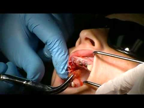 Physics Forceps Full Mouth Extractions + Immediate OCO Biomedical Implants (Part 1 of 3)