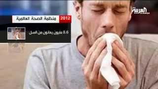 مرض السل يعتبر ثاني أخطر مرض قاتل بعد الإيدز
