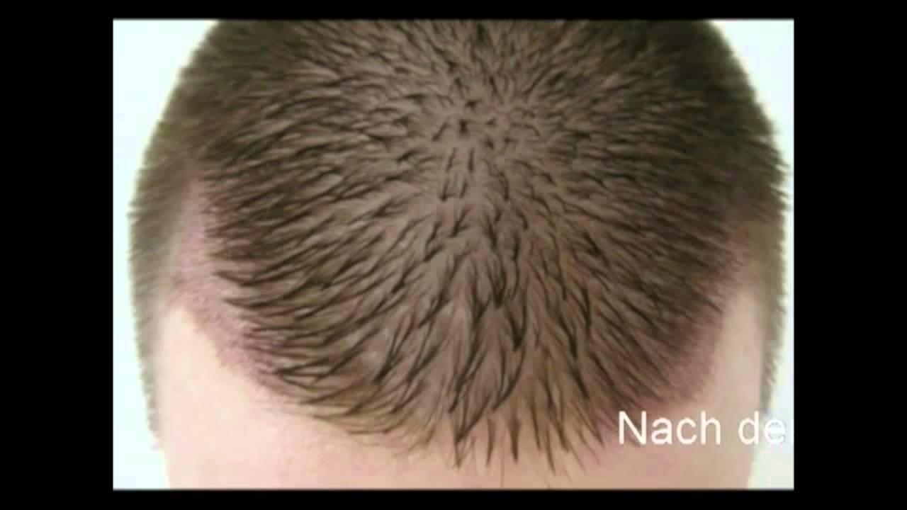 whtc unshaved recipient fue hair transplant receding
