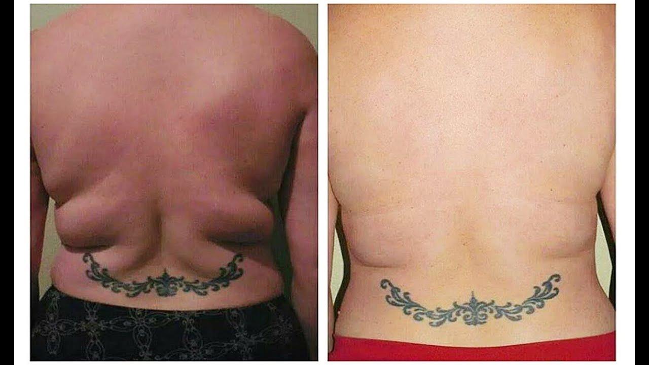 bajar gordos de la espalda