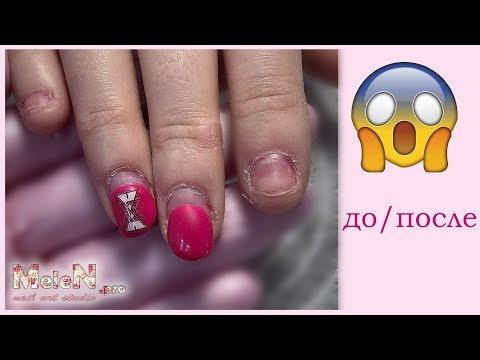 Комбинированный маникюр 💅 Восстановление ногтей