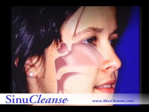 Neti Pot- How Sinucleanse NetiPot Works? As seen on Oprah and Dr. Oz