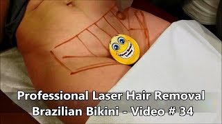 Professional Laser Hair Removal - Brazilian Bikini - Video # 3…