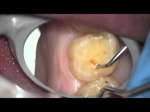A hole in tooth where a filling use to be youtube a hole in tooth where a filling use to be solutioingenieria Choice Image