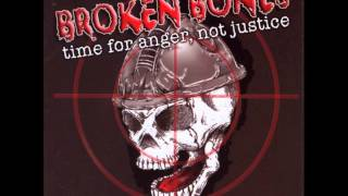 Watch Broken Bones Dead Inside video