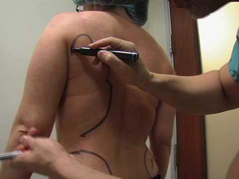 Back Liposuction Surgery Back Fat Lipo Surgeon Dr. David Amron