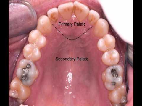 Intra oral anatomy   movie