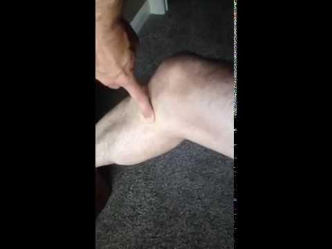 Knee Bursitis Diagnosis and Treatment   Auburn Medical Group