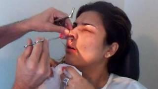 Remove curativo, packing / gaze 4 dias após cirúrgia endoscópica p/ polipose e sinusite.