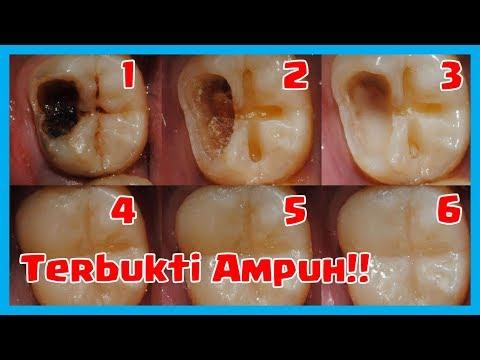 5 Cara Ampuh Mengobati Sakit Gigi Berlubang Tanpa Harus Kedokter