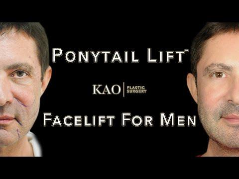 KPS Case Study 1: Jan (Ponytail Lift™)