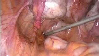 Submüköz Miyom ve Endometriomanın Virgo Hastada Laparoskopik Yönetimi Prof. Dr. Barış Mülayim