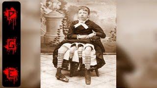 Los 10 fenómenos de circo que todos querían ver