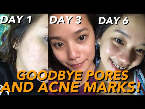 GOODBYE PORES AND ACNE MARKS! (CLEAR SKIN IN JUST 7 DAYS!) | Philippines