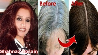 Shahnaz Husain Hair Tips For Grey Hair~Permanently Turn Grey(White) Hair into Black hair~Priya Malik