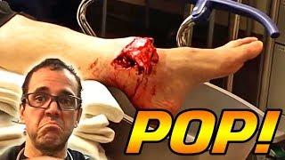 Popping Broken Bones - Dr  ER and RESTMORE thumbnail